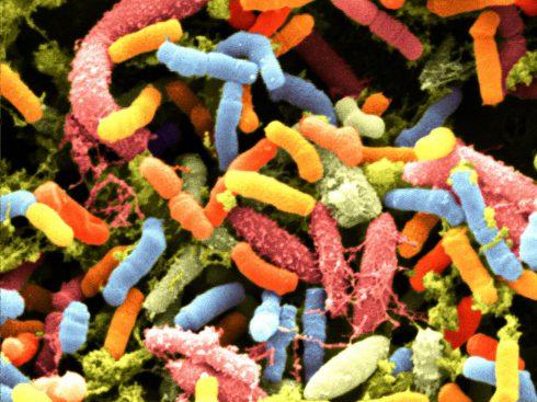 Môže za obezitu alebo autizmus aj zlá mikroflóra?