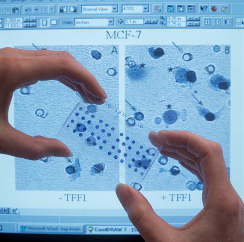 Rumunský lekár objavil metódu, ktorá nájde rakovinové bunky skôr, než sa začnú prejavovať.