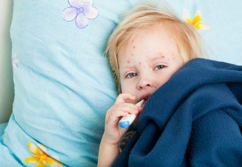 """Osýpky nie sú """"bežná detská choroba"""". Prečo sa vrátili?"""