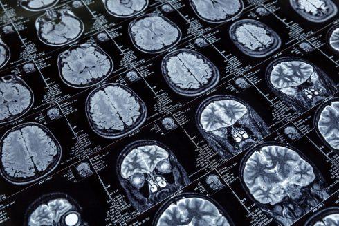 Julia Gottwaldová: Čítať myšlienky vedci nevedia. Zatiaľ…