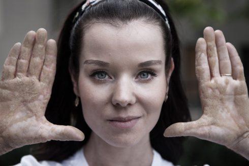Ichtyóza: Aké to je, keď vás bolí uterák aj prestieradlo? Stále a stále a stále